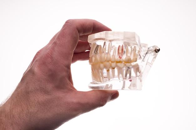 Стоматолог держит макет челюсти зубных протезов на белом
