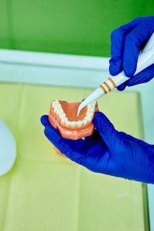 치아 모델 틀니와 치주 프로브를 들고 치과 의사.