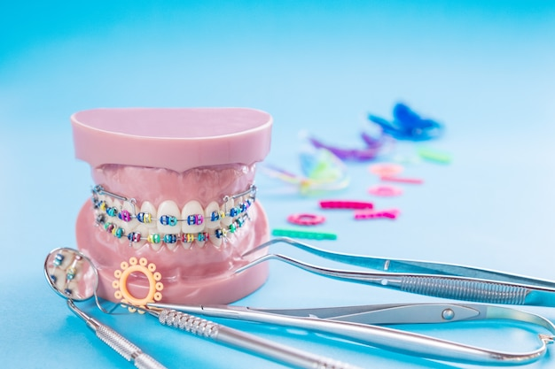 Dentist tools and orthodontic model on blue table.