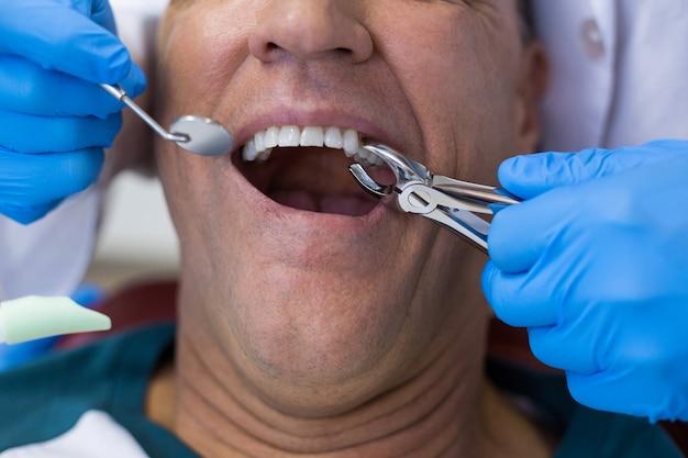 Стоматолог с помощью хирургических плоскогубцев, чтобы удалить кариес