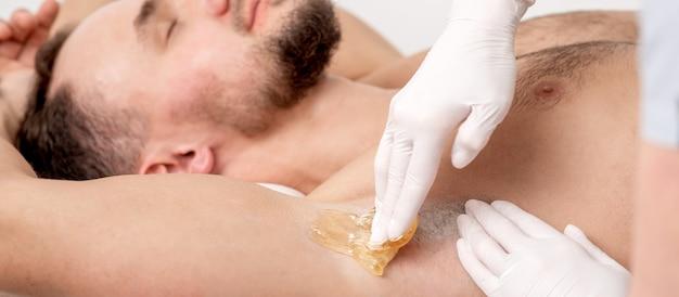 Депиляция и эпиляция мужской подмышки жидкой сахарной пастой. рука косметолога, применяя восковую пасту на подмышке мужчины. концепция гладкой подмышки