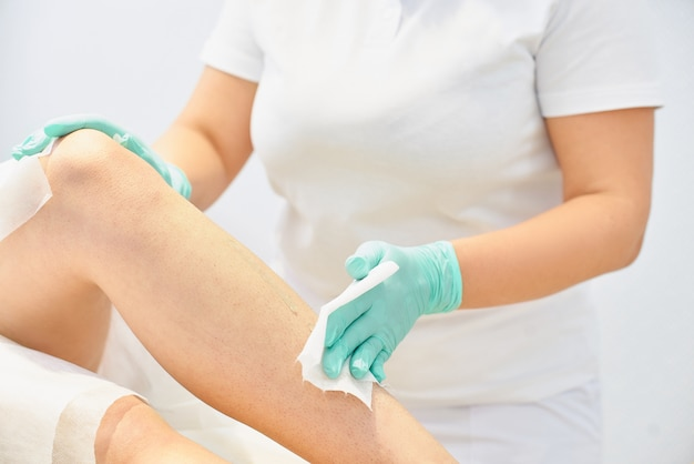 Depilation and beauty concept - procedure of hair removing on leg woman with sugar paste or wax honey and blue gloves hand