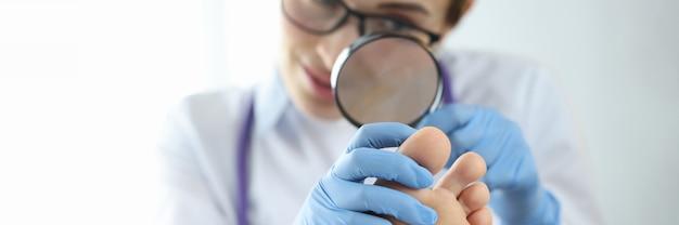 虫眼鏡のクローズアップ診断と真菌の治療で足指の爪を調べる皮膚科医