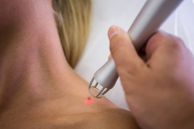 Dermatologist removing mole from womans shoulder