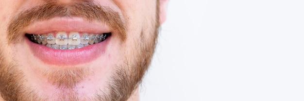 치아 교정을 위해 교정 장치를 사용하는 사람 얼굴의 세부 사항.