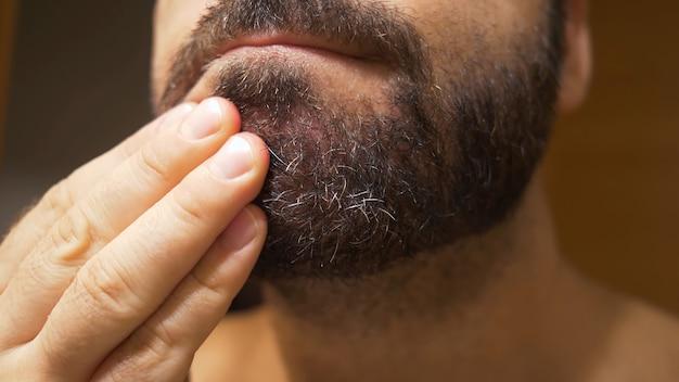 あごひげ部分に脂漏性皮膚炎を患っている男性のあごの詳細。乾燥肌がはがれ、かゆみやフケの原因になります。