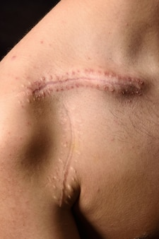 Detail of a scar on the clavicle