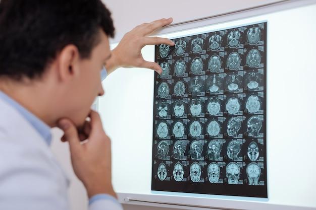 Диагностическое исследование. серьезный вдумчивый опытный рентгенолог, держащий рентгеновский снимок и ищущий патологию головного мозга, ставя диагноз