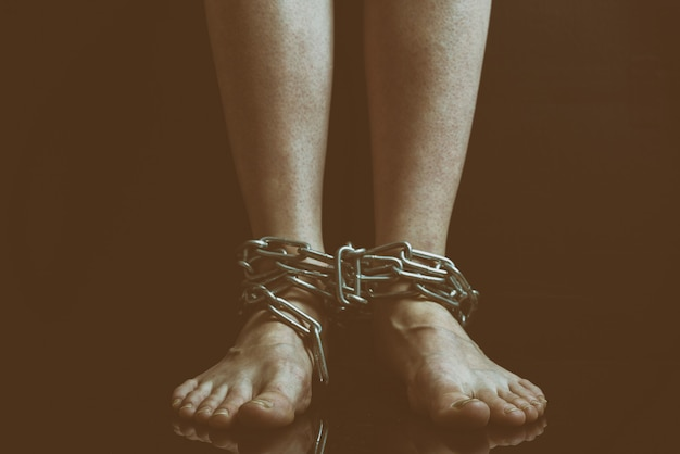 Dirty womenfeet with swollen veins hang bound metal chains close-up