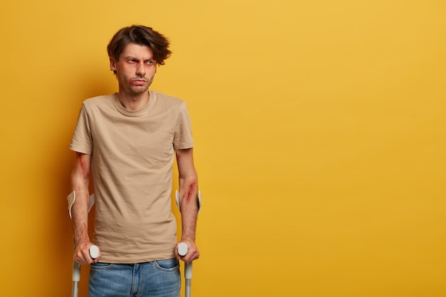 Disabled injured man has broken or sprained ankle, poses with crutches, recovers after dangerous riding on bike, needs surgery, has bruised face and arms, isolated on yellow wall, blank space