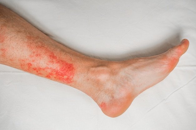 Disease of the skin on the legs itchy red rashes and spots