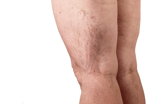 The disease varicose veins on a womans legs. white background