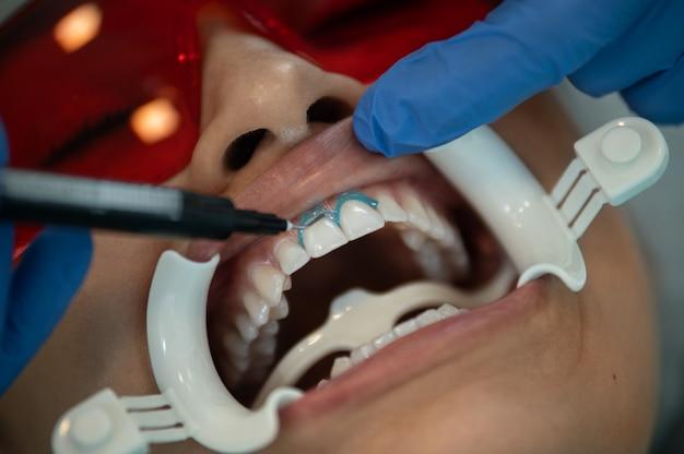 医者は歯茎から歯を分離するためにゲルを適用します。保護メガネと口開創器を持つ女性のクローズアップの肖像画。歯のホワイトニングジェルを塗る