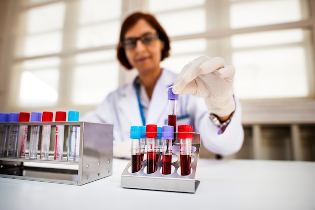 Doctor checking blood samples