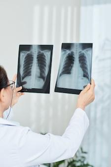 Врач сравнивает рентген грудной клетки
