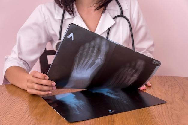 의사가 나무 테이블에 환자 xrays 비교