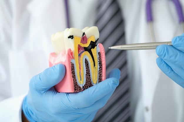 歯のクローズアップの人工プラスチックモデルの虫歯にペンを示す医師の歯科医