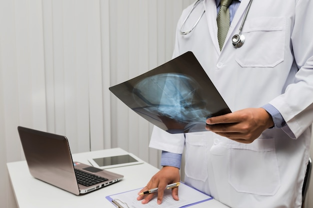 Doctor diagnose and analyze on x-ray film of patient