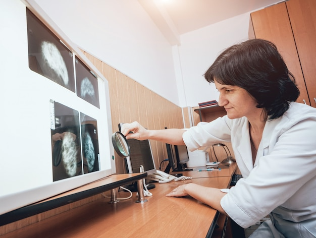 Doctor examine mammography test. medical equipment at the hospital