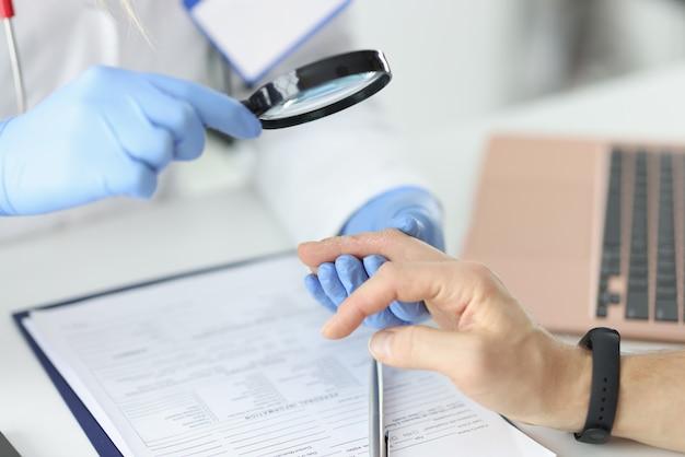 医師は虫眼鏡を通して患者の剥離した指を調べます。肌の問題と解決策の概念