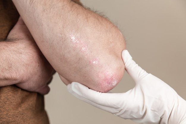 The doctor examines psoriasis. doctor examines patient skin. hands in medical gloves palpating skin with red rash. examination by dermatologist, problem with health an allergy.