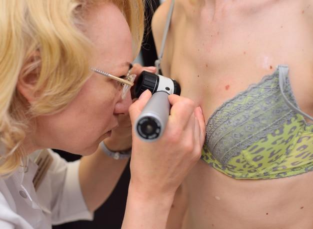 あざとほくろの患者を調べる医師。母斑とほくろの検査。医師は患者のほくろを検査します。