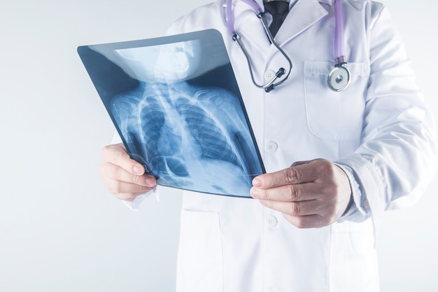 Doctor examining chest x-ray film of patient at hospital.