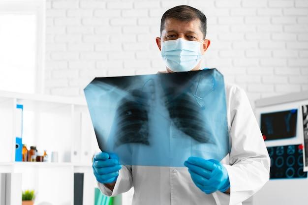 Врач изучает рентгеновское сканирование легких в своем офисе в больнице крупным планом