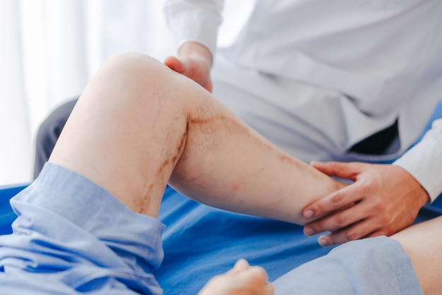 Doctor examining a patient suffering from injured with a bruise on knee and leg