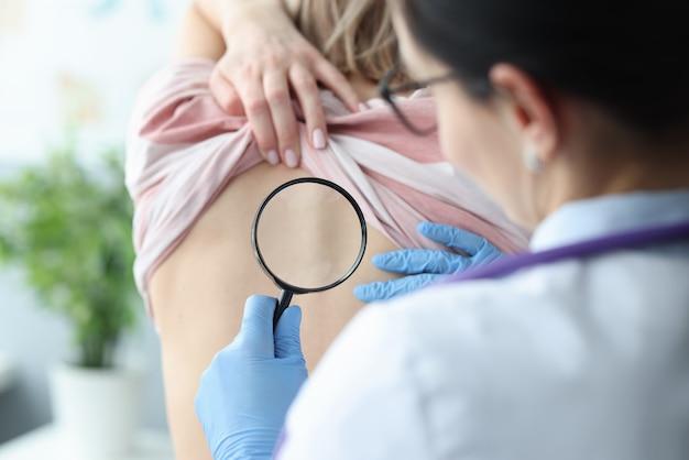 虫眼鏡を使用して女性患者の背中の皮膚を調べる医師。皮膚病の概念の診断
