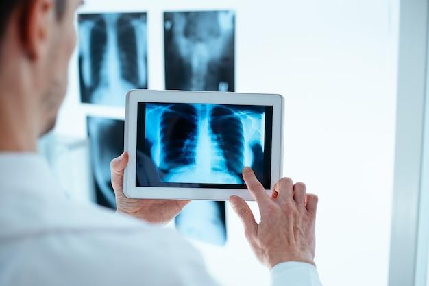 Врач изучает рентген грудной клетки и ребер на цифровом планшете.