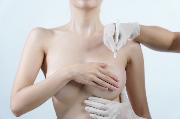 Doctor hand drawing lines on woman breast, breast implant surgery concept.