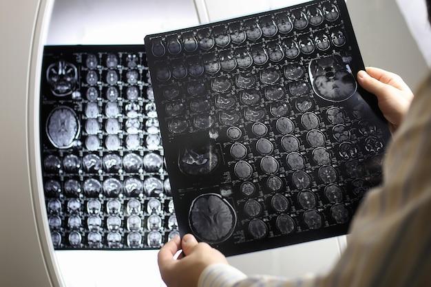 診断病院で脳mriワークフローの写真を持っている医師