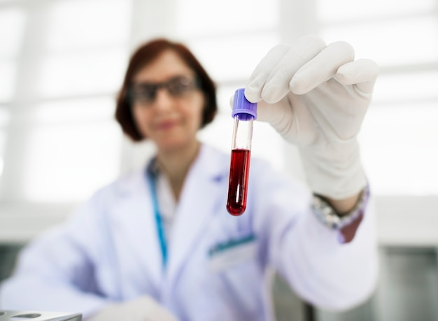 Doctor holding blood sample
