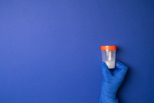Doctor holding a plastic container with sperm for medical analysis. artificial insemination