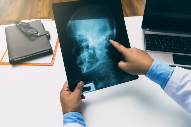Doctor holding and pointing on x-ray film of patient.