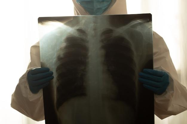 Доктор держит рентгеновский снимок, исследуя внутреннее заболевание легких