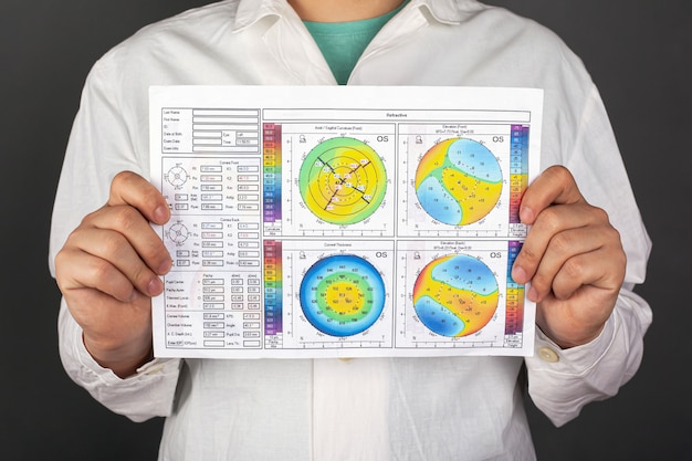 The doctor holds in hand a topography of the cornea with a diagnosis of keratoconus. corneal dystrophy.