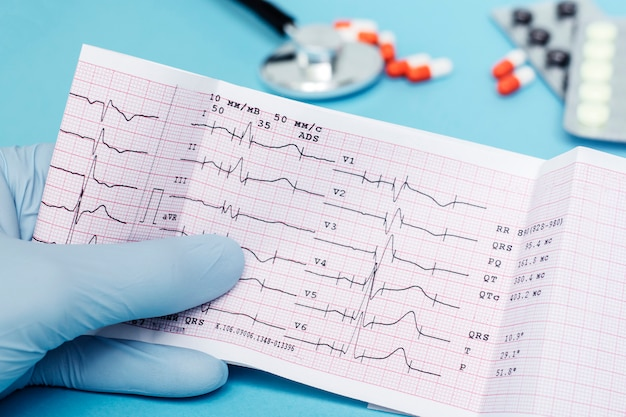 The doctor holds in his hand a cardiogram of the heart