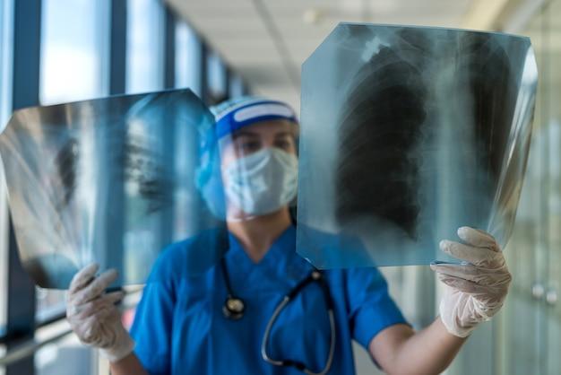 보호 복과 안면 보호대를 입은 의사가 폐의 Xray 필름 인 Covid19를보고 있습니다. 감염병 세계적 유행 프리미엄 사진