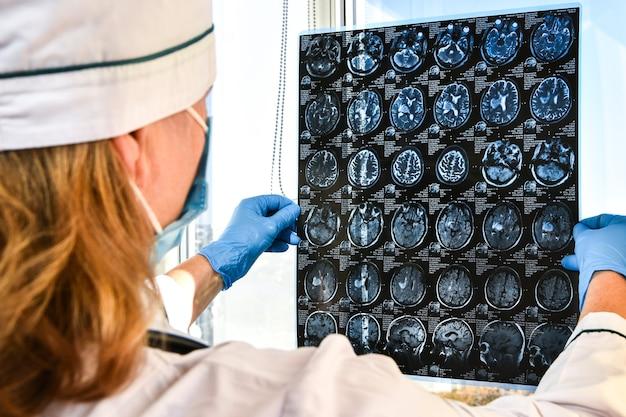 의료 사무실에서 뇌 mri를 들고 장갑을 보호하는 의사. 클리닉에서 인간 머리의 mri 스캔. 전문 뇌 의사가 환자에게 상담사를 제공합니다