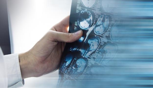 Врач проверяет рентгеновскую компьютерную томографию