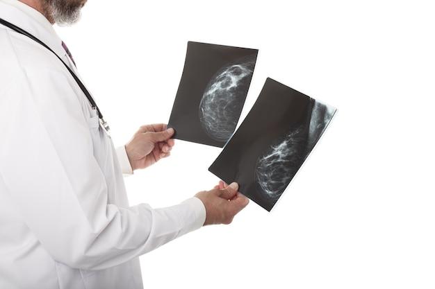 マンモグラフィーを見ている医師