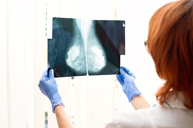 Врач смотрит на рентген молочных желез