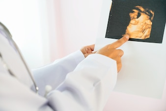 Doctor looking at ultra sound photo in hospital