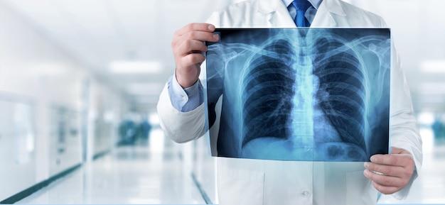 Доктор смотрит рентгеновский снимок грудной клетки в больнице