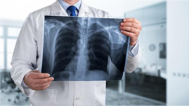 Доктор смотрит рентгеновский снимок грудной клетки в больнице.