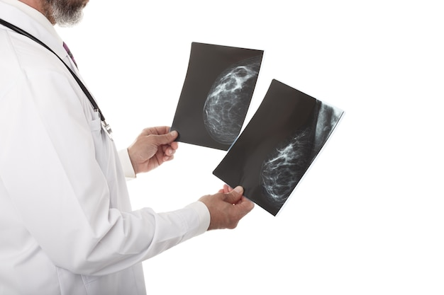 Doctor looking at a mammography