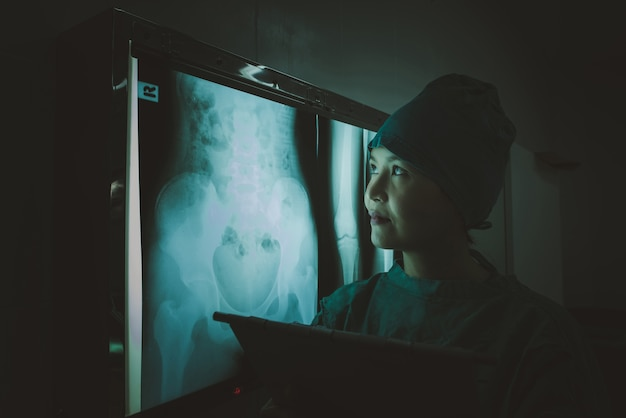 Doctor looking patient abdominal x-ray film at radiology department in hospital.