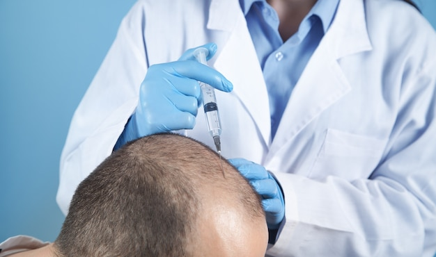Doctor makes injection in the man head for hair growth.